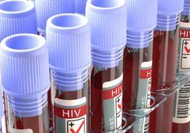 Лечение ВИЧ-пациентов в Латвии в этом году начинают раньше