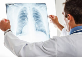 A new test system for detecting tuberculosis was developed in the Russian Federation