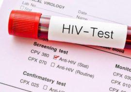 Экспресс-тест для диагностики ВИЧ: возможности и риски