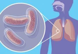 В РФ проводят анонимное исследование химиопрофилактики туберкулеза для ЛЖВ