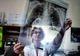 Страны Центральной Азии начнут совместно лечить мигрантов от туберкулеза